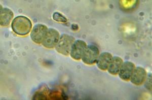 Nostoc-Zellkette mit Heterocyste